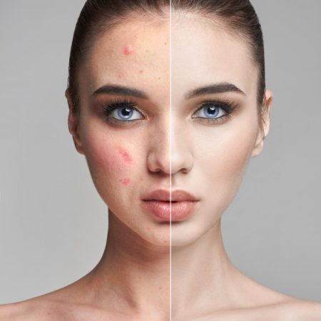 pimples-acne-woman-face-before-after_91497-294